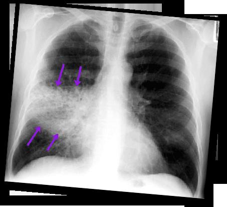 Respiratory-pneumonia-one